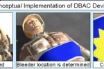 DARPA's DBAC device uses sound to stop bleeding