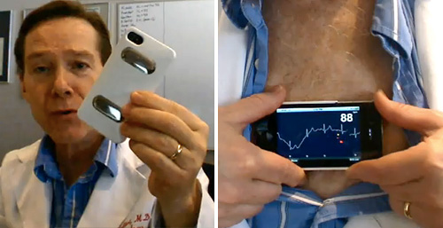 iPhonECG turns your iPhone 4 into an ECG machine [Video]