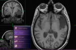 iPad Radiology App for Mobile Diagnosis Approved by FDA