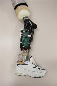Bionic Leg the Next Step in Prosthetics
