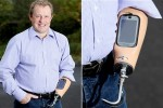 Nokia C7 sits in world's first prosthetic smartphone arm
