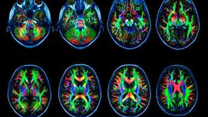 Research suggest web addicts brains really are wired differently