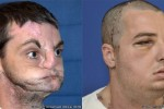 Face transplant recipient recovering well post surgery