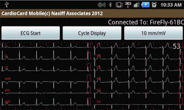 Android tablet and smartphone 12-lead EKG machine launches
