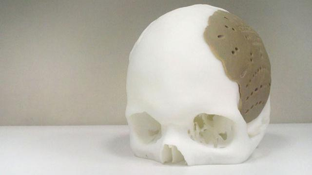 Patient has 75% of skull replaced with 3D-printed implant