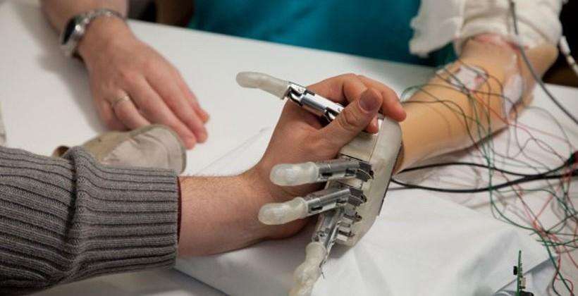 Prosthetic hand gives amputee a sense of touch