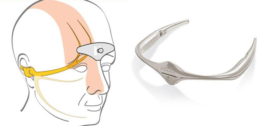 Cefaly headband gets FDA approval for migraine treatment