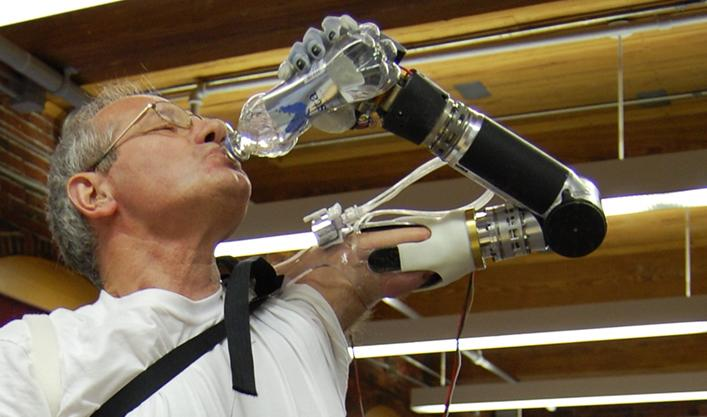 Dean Kamen's incredible robot arm is good to go