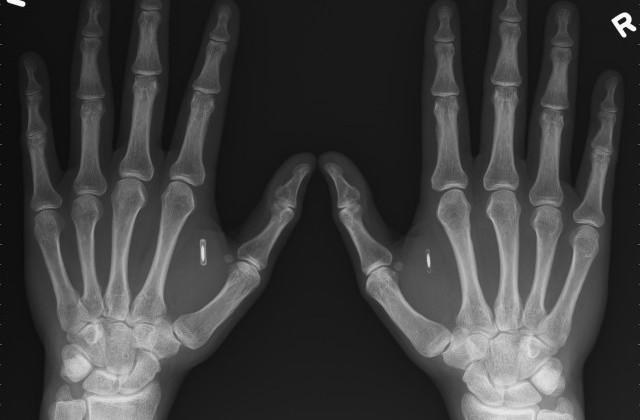 Man injects Bitcoin wallet NFC chips into his hands