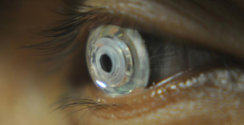Zooming contact lenses enlarge at a wink