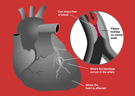 Targeted nano-particles can now prevent heart attacks
