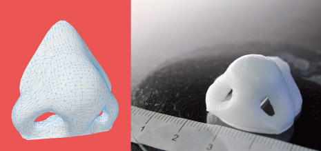 Bioprinter 3D-prints living cartilage nose in 16 minutes