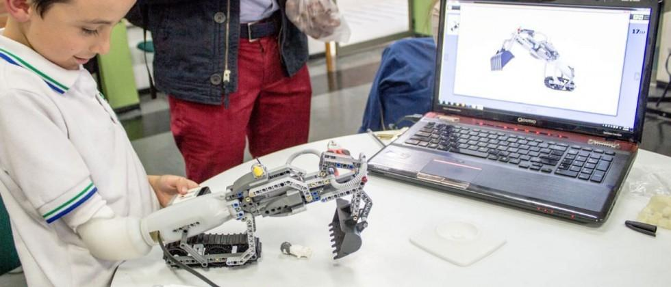 This prosthetic arm is expandable with Lego