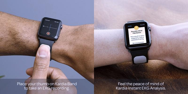 Apple Watch gets built-in ECG monitor with KardiaBand
