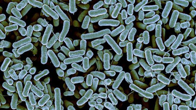 Bacteria resistant to 'last-resort' antibiotics found for the first time in U.S.