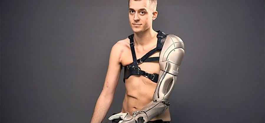 Prosthetic bionic arm has integrated charger, light, and drone