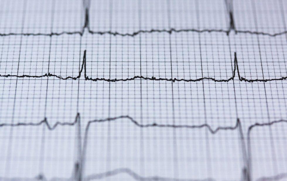 Apple patent details smart blood pressure monitoring system