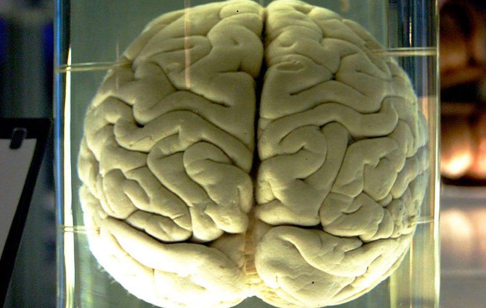 Brain implants could boost memory by 30% says scientists