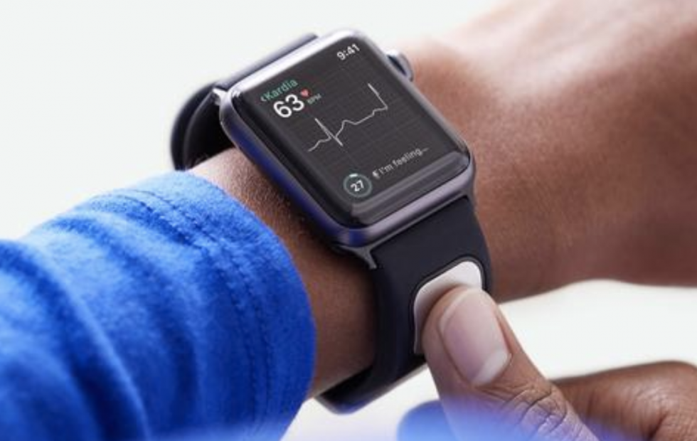 AliveCor Apple Watch band provides non-invasive blood tests in new study