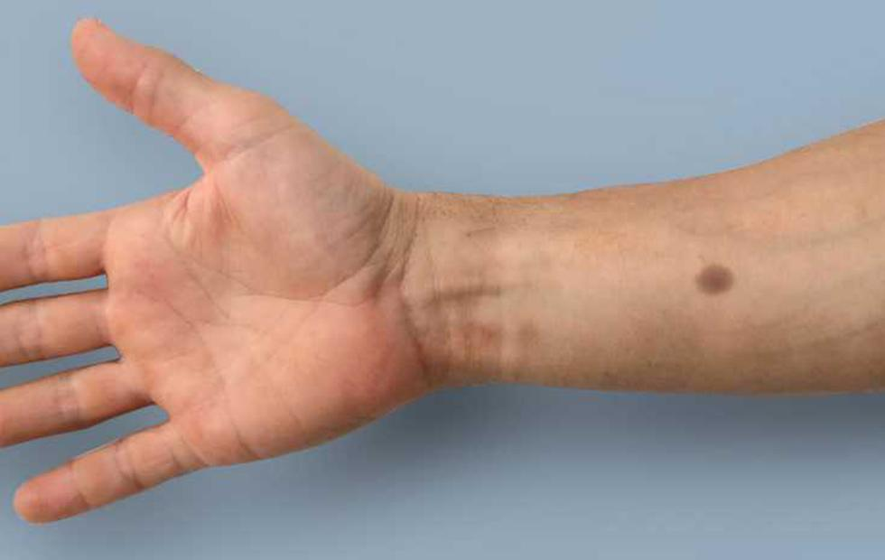 This implant creates an artificial mole when cancer is detected