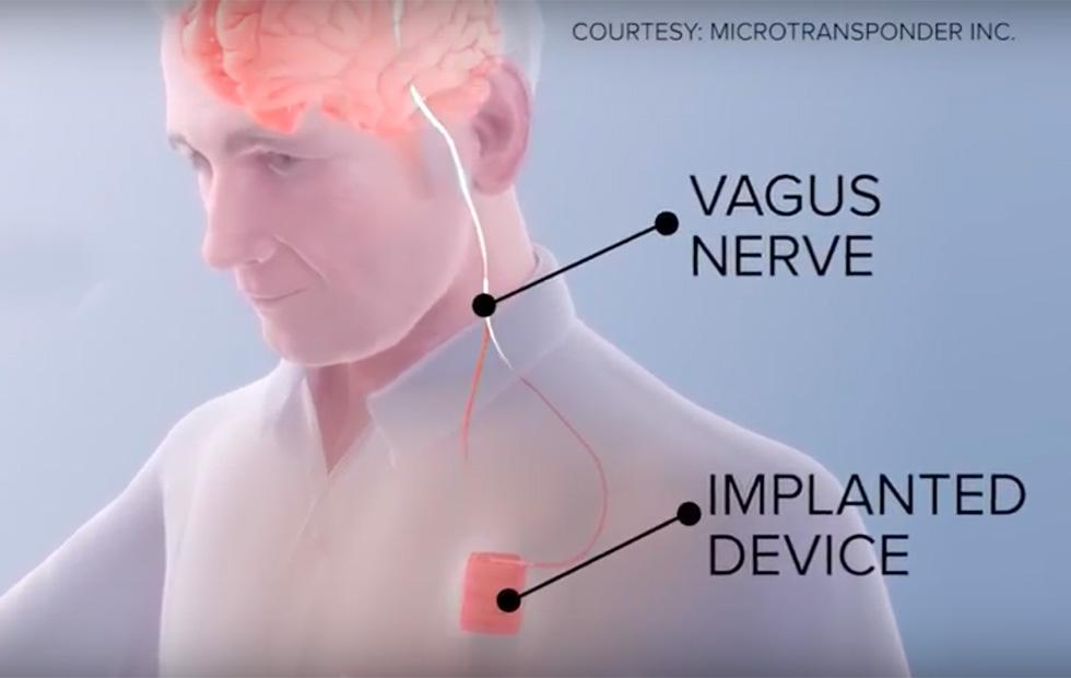 Neurostimulation implant helps stroke patients recover faster