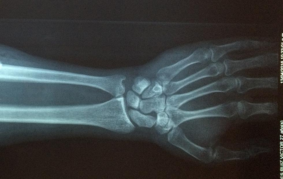 OsteoDetect AI tool finds wrist fractures, gets FDA approval