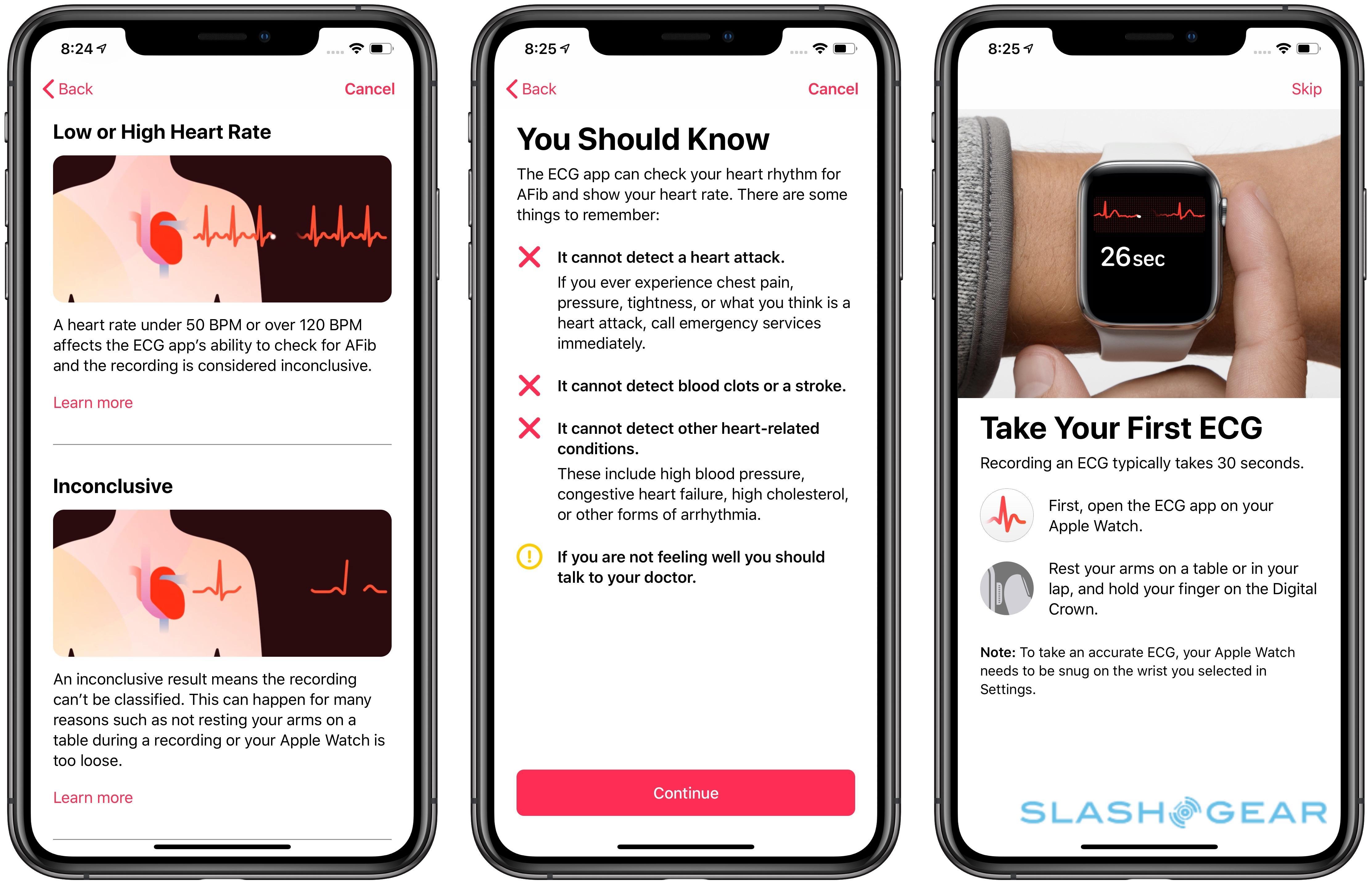 241ff885d The Apple Watch ECG app is my heart s new best friend - SlashGear