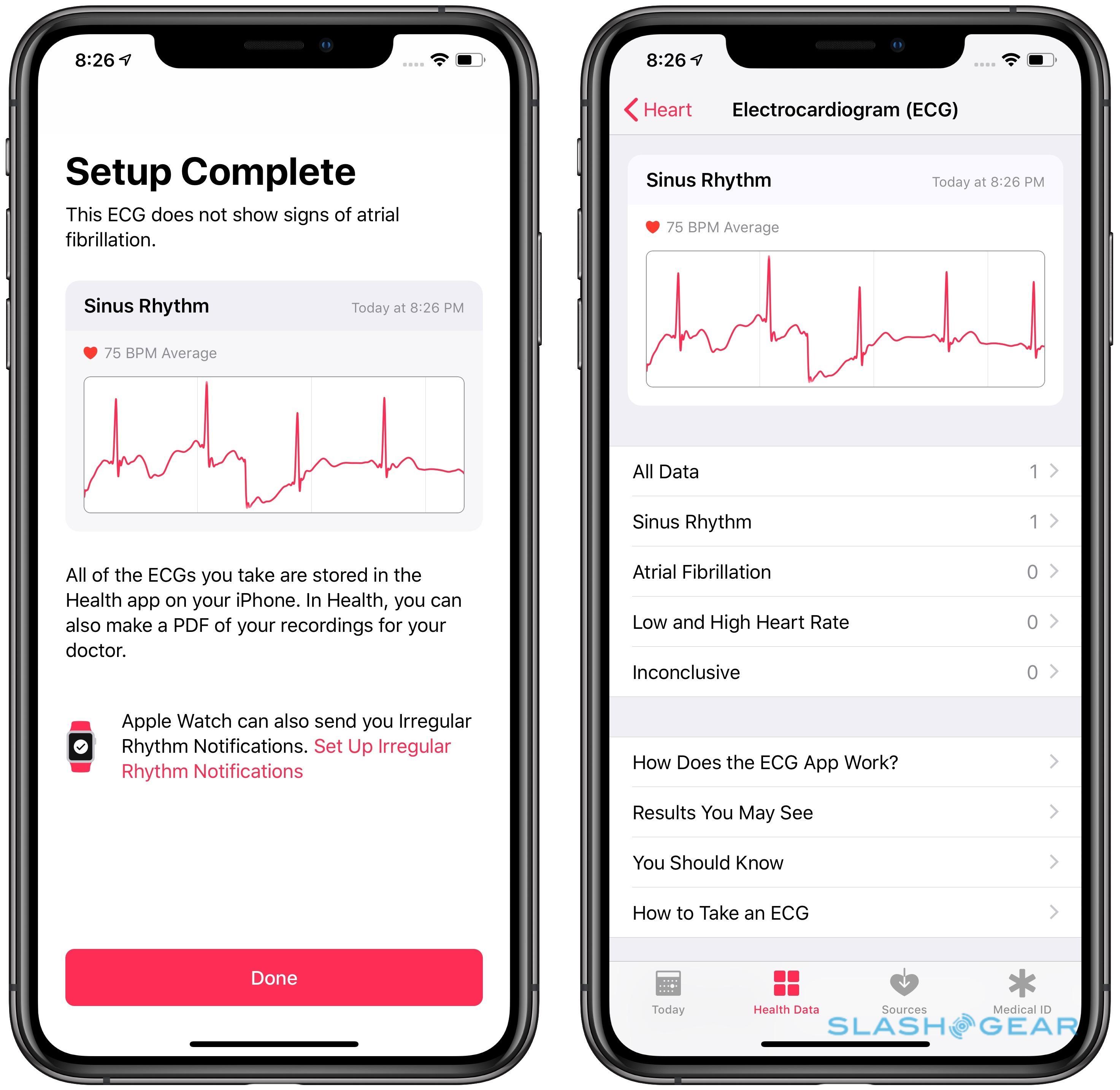 The Apple Watch ECG app is my heart's new best friend
