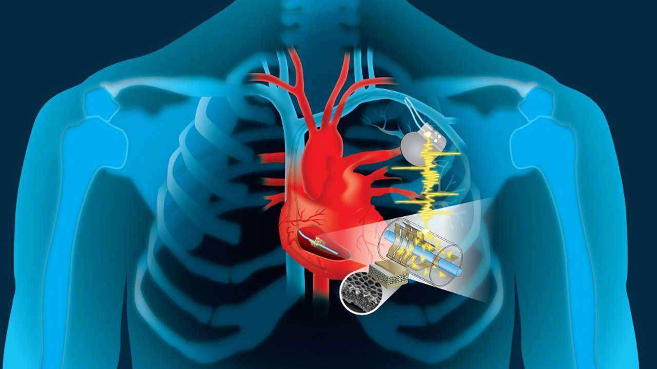A device that harvests energy from heart's motion could power implantable devices
