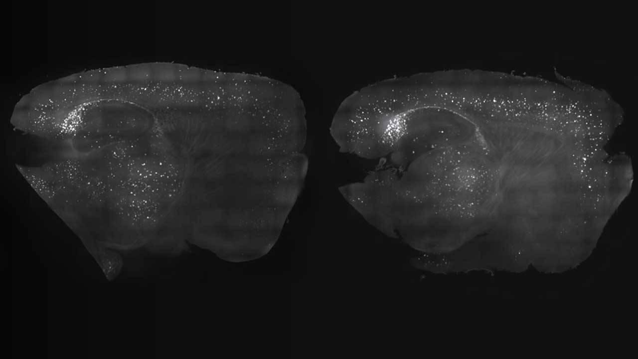 MIT research shows brain wave stimulation might help Alzheimer's