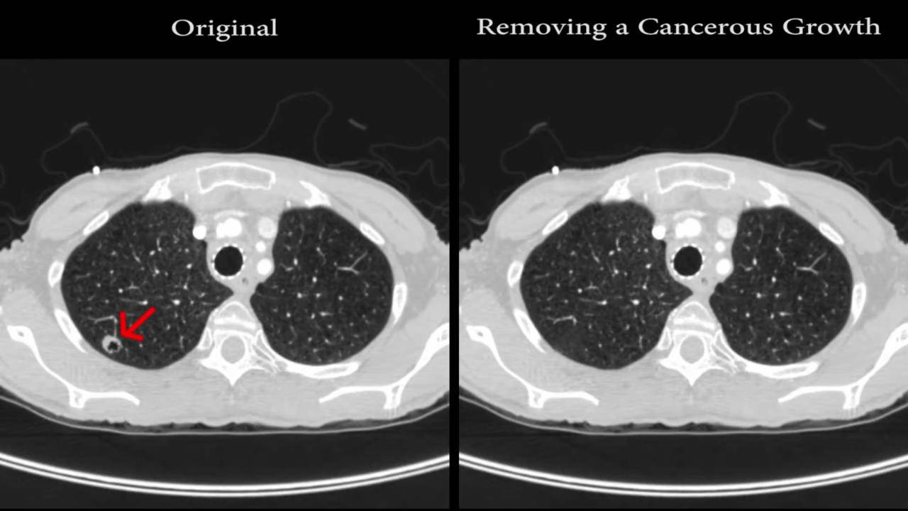 Malware can add or remove cancerous nodes in CT scans