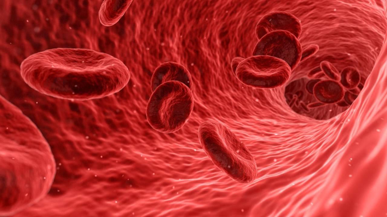 Low 'bad' cholesterol levels may increase stroke risk in women