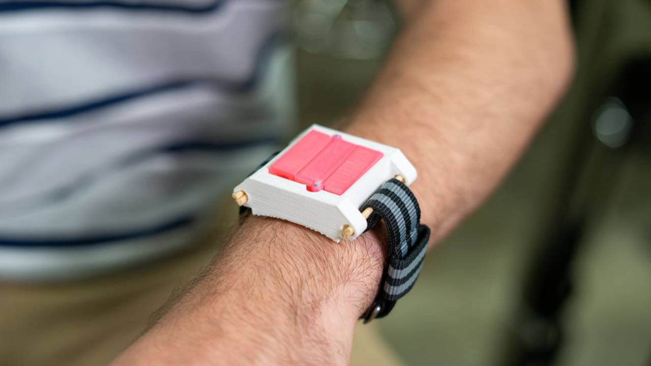 This 'watch' may be the future of emergency allergy shots