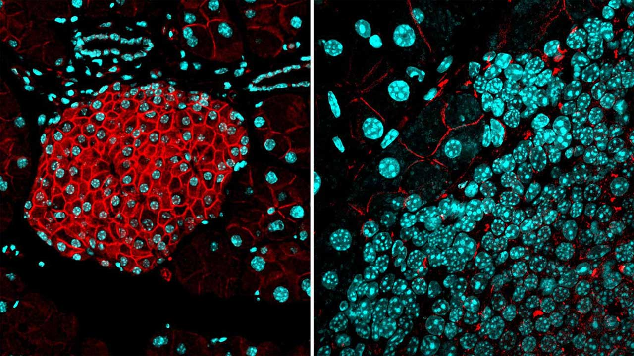 Biological barrier discovery prevents cancer from forming new tumors