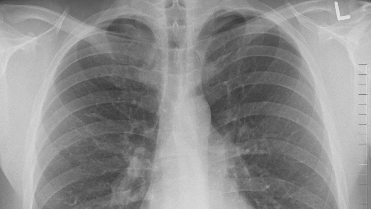 Lung biopsies hint toxic fumes may cause severe vaping disease