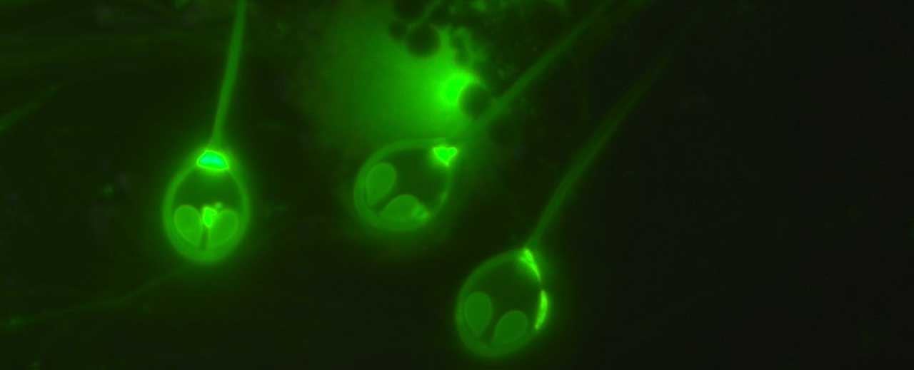 New discovery reveals a parasite that needs no oxygen to live