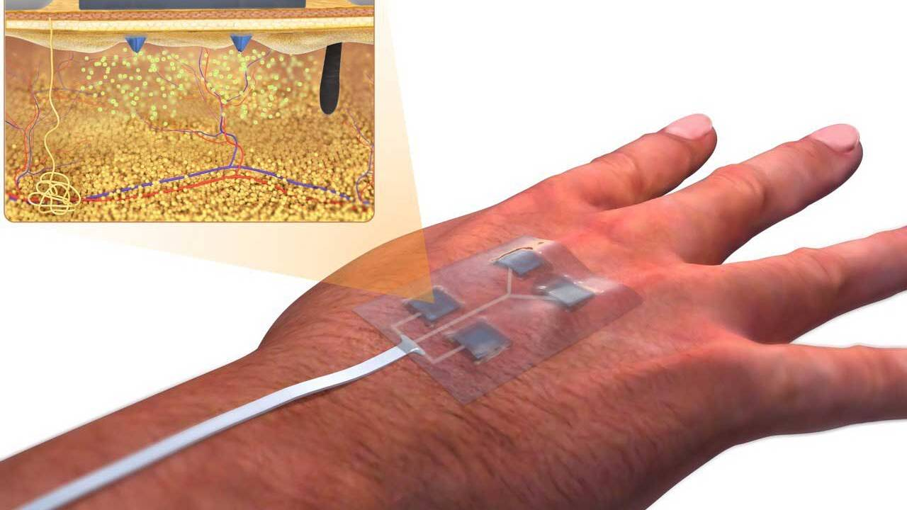 UConn researchers design new wireless smart-bandage to heal wounds
