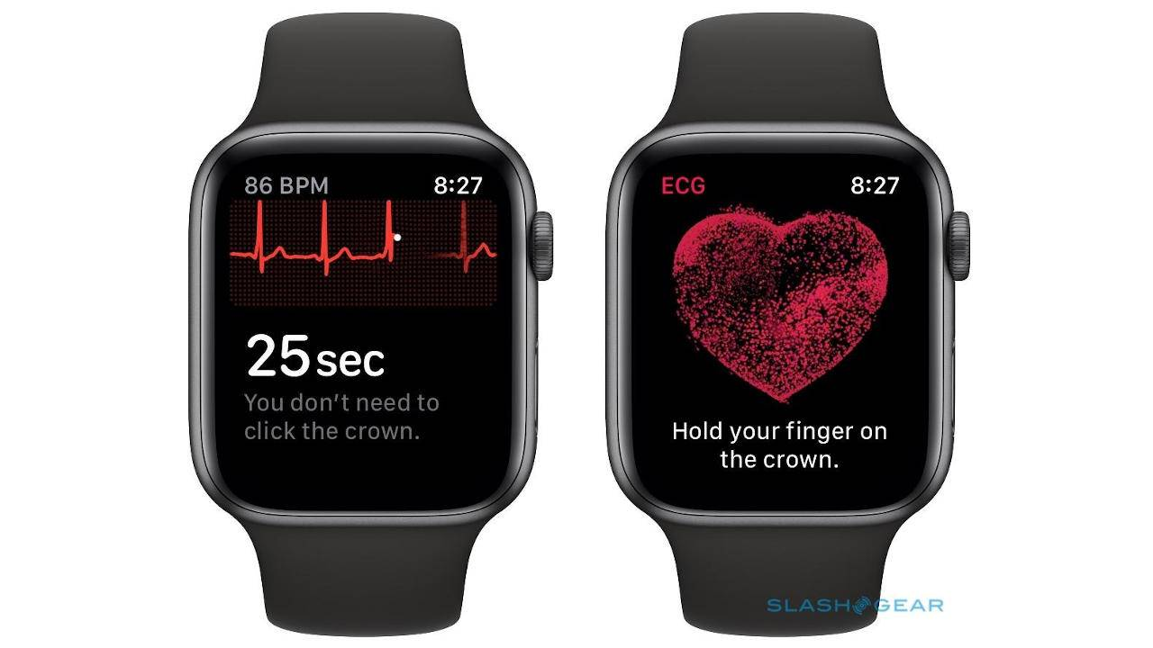 Apple Watch detected a heart condition that a hospital ECG missed