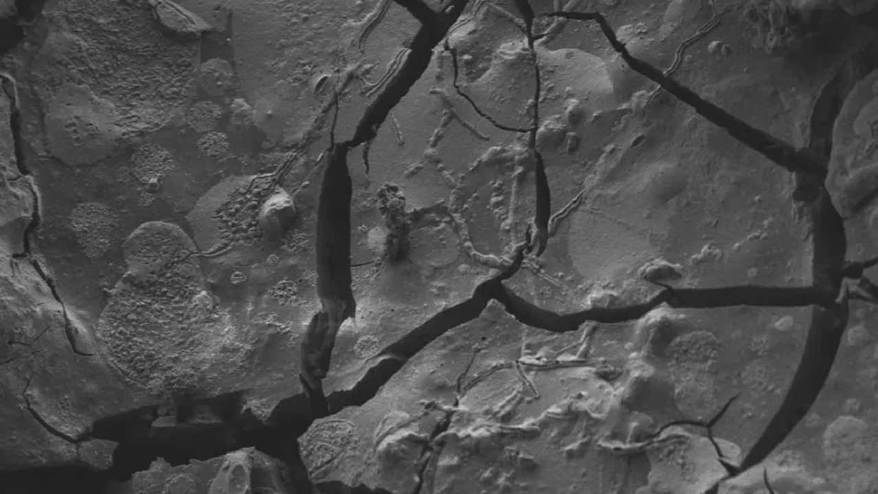 Preserved brain cells found in a victim of Mount Vesuvius eruption