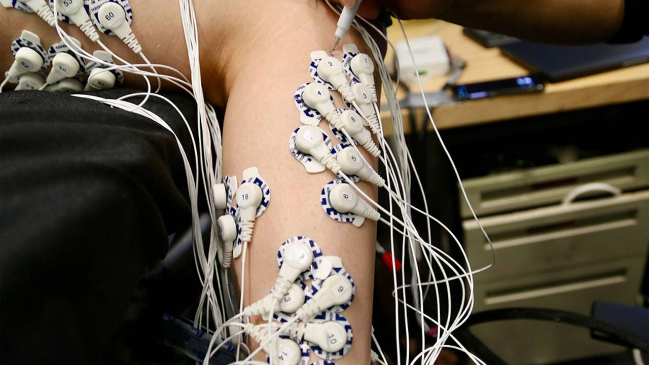New surgical technique could improve control of prosthetic limbs after amputation