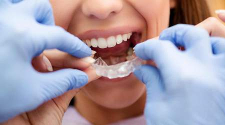Find the Best Invisible Braces