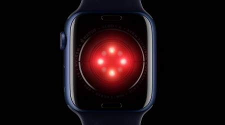 Apple Watch with blood glucose monitor could come next year
