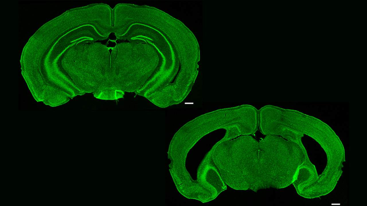 Researchers study the mouse brain to learn about the memory center