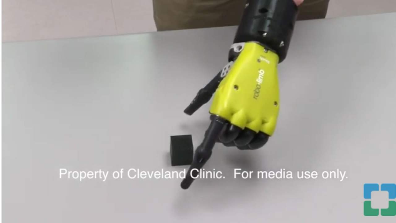 Bionic arm communicates with the brain of the wearer