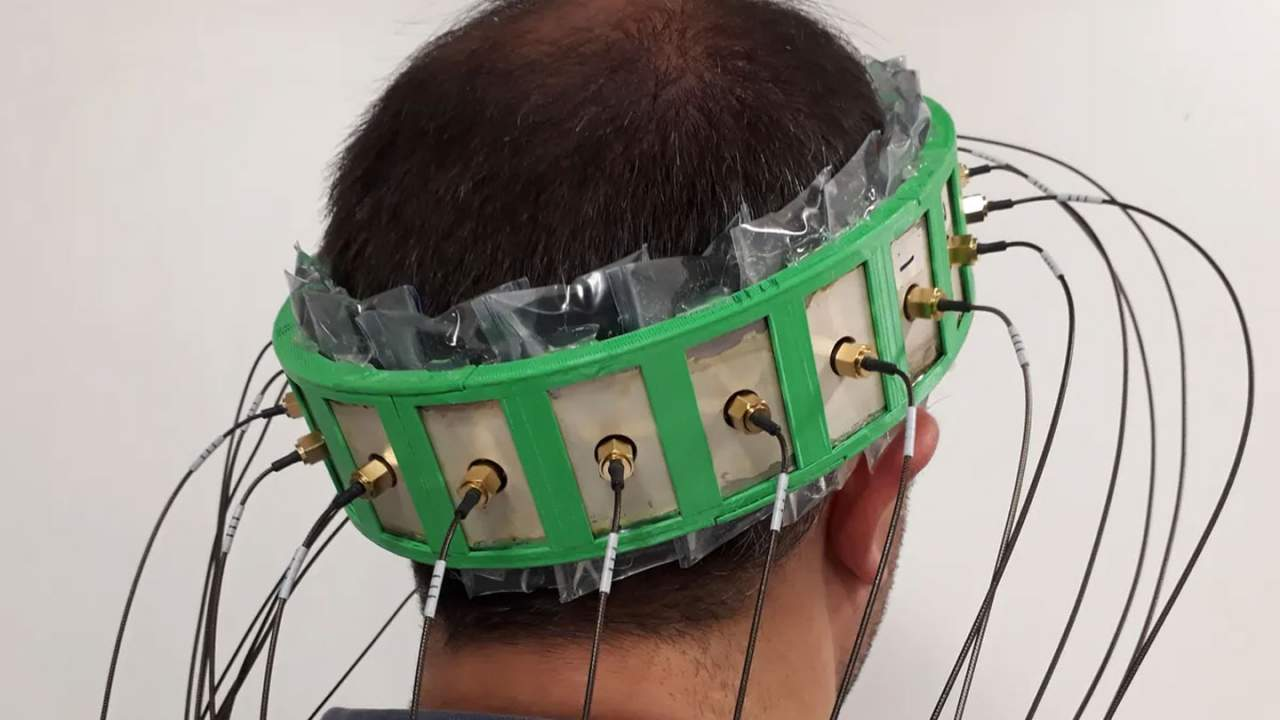 A new smart helmet can determine stroke severity and type